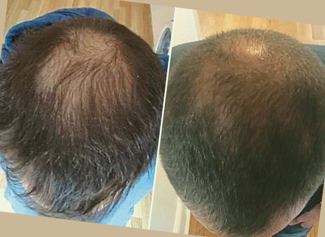 propecia hair growth results